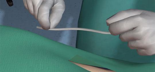 Bioengineered Vein Successfully Implanted in U.S. First
