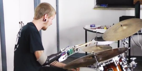 The Drummer with the Robotic Arm
