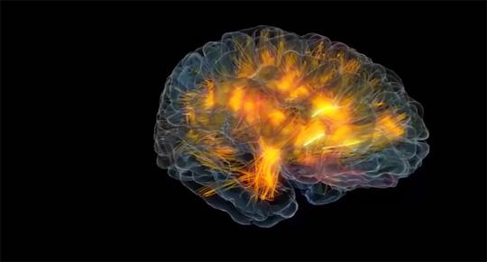 Realistic Visualization of a Brain