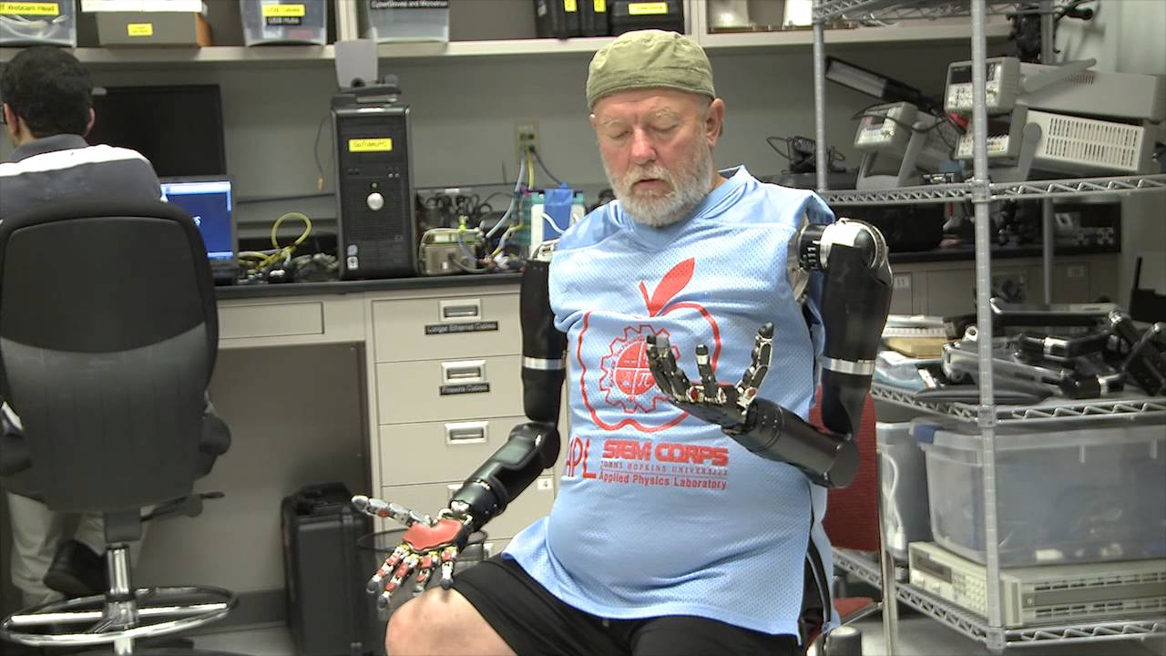 World's First Two Prosthetic Arms