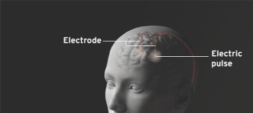 Electrodes Implanted Deep Within the Brain to Relief Depression