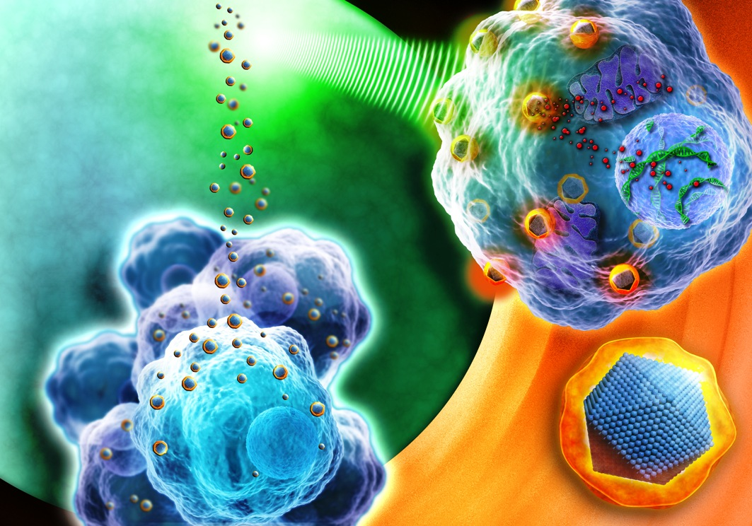 Nanotechnology Shows Promise for More Accurate Prostate Cancer Screening and Prognosis