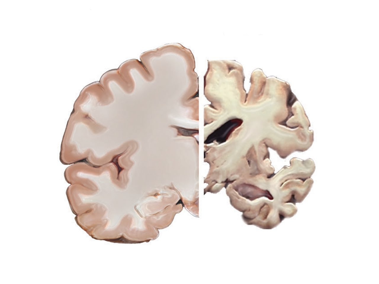 Vsauce – Alzheimer's and the Brain
